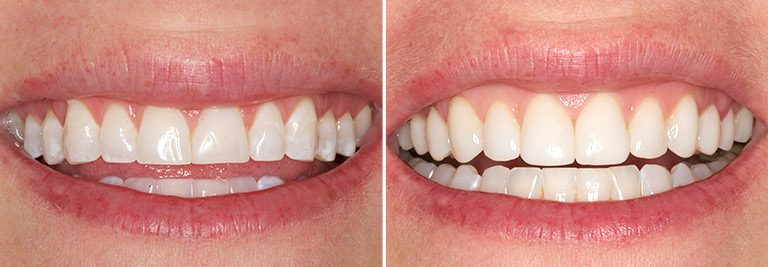Cosmetic Bonding Before and After